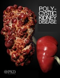 Polycystic Kidneys (PKD)